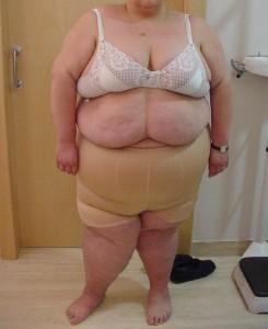 rodillas-obesidad-morbida-CLB-carlos-dr-ballesta
