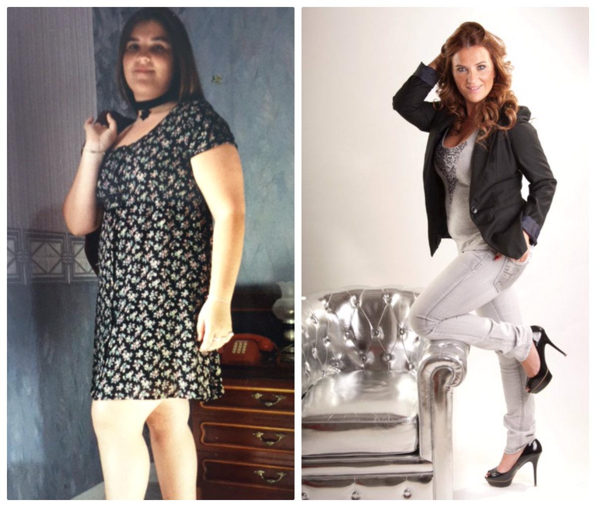 Cirugia de Obesidad: Antes y Después - Miriam Sánchez